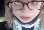 بیماری عجیب این دختر باعث جداشدن سر از بدنش شد!+عکس
