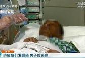 ترکاندن جوش صورت، مرد چینی را تا پای مرگ برد! +عکس
